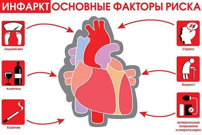 faktory-riska-infarkta