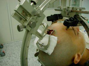 hirurgicheskoe-lechenie