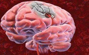 infarkt-golovnogo-mozga