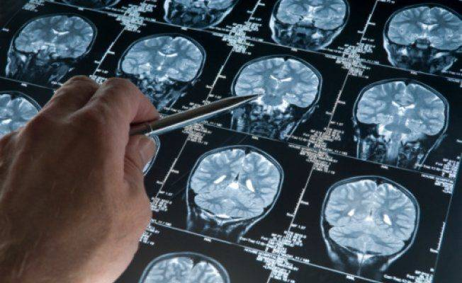 kompyuternaya-tomografiya-mozga