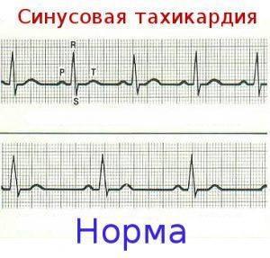 sinusovaya-tahikardiya