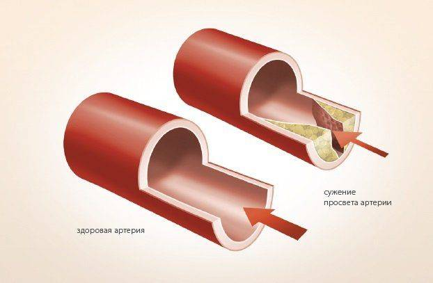 suzhenii-prosveta-arterij
