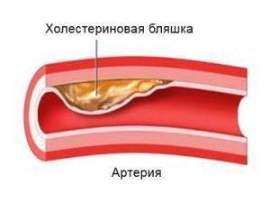 blyashki-holesterina
