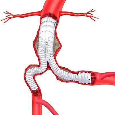endoprotezirovanie-aorty