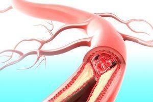 mehanizm-razvitiya-ateroskleroza