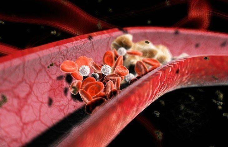 obrozovanie-tromboza