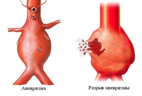 razryv-anevrizmy-bryushnoj-aorty