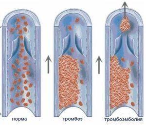 tromboembolizm-nizhnih-konechnostej