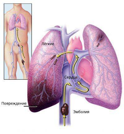 trombojembolija-legochnoj-arterii-2