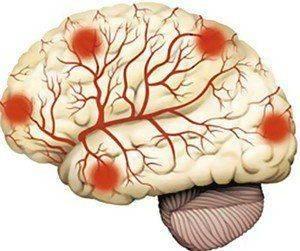Лечение энцефалопатии головного мозга у взрослых