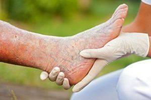 Лечение тромбофлебита народными средствами домашних условиях