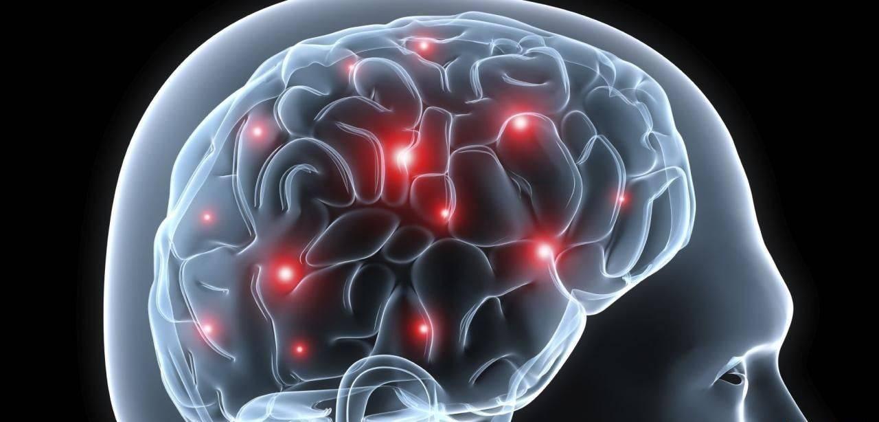 Точки в мозге