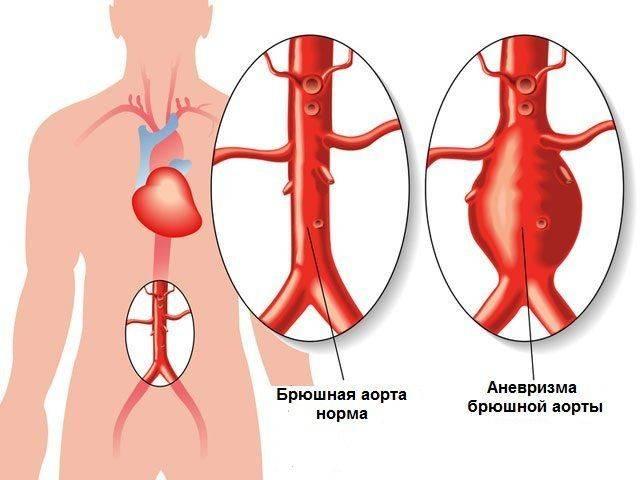 anevrizma-bryushnoj-aorty