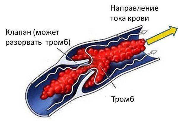obrazovaniya-tromba