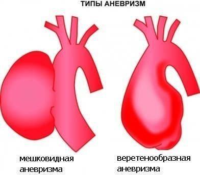 tipi-anevrizm