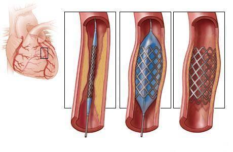 aortokoronarnoe-shuntirovanie