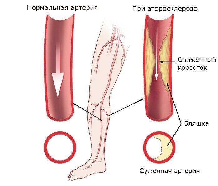 ateroskleroz-nizhnih-konechnostej