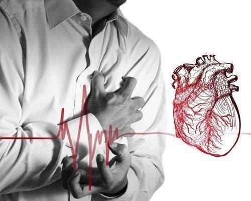 gruppy-riska-infarkt
