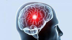 ishemicheskie-ataki-mozga