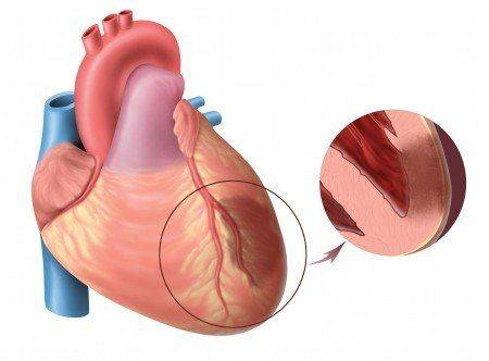 obshirnyj-infarkt-miokarda