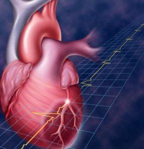 Обширный инфаркт миокарда последствия шансы выжить