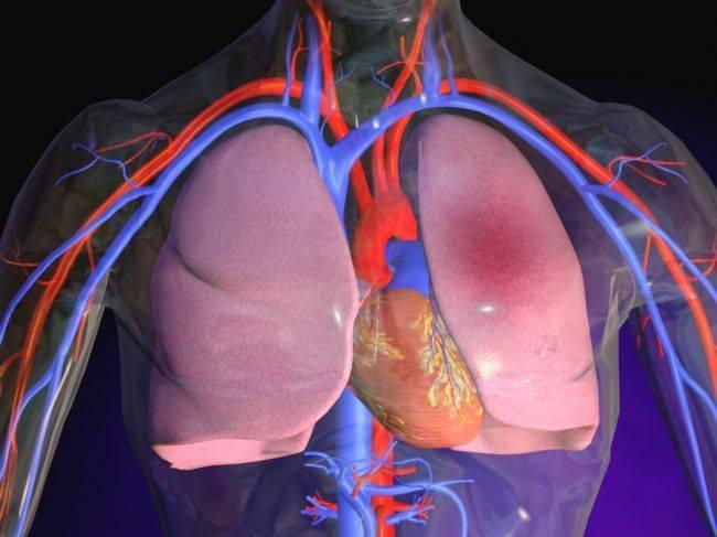 tromb-perekryvaet-legochnuyu-arteriyu