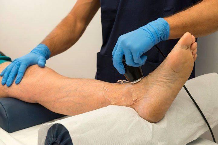 Лечение тромбоза нижних конечностей