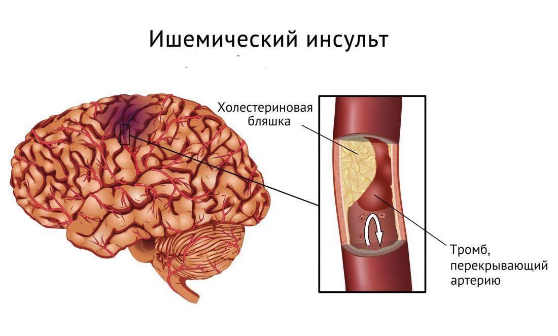 Ишемический инстульт