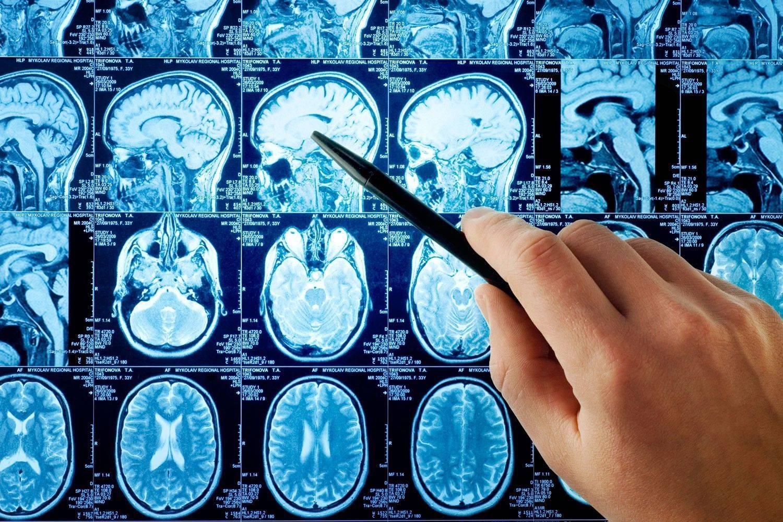 Оценка мозга