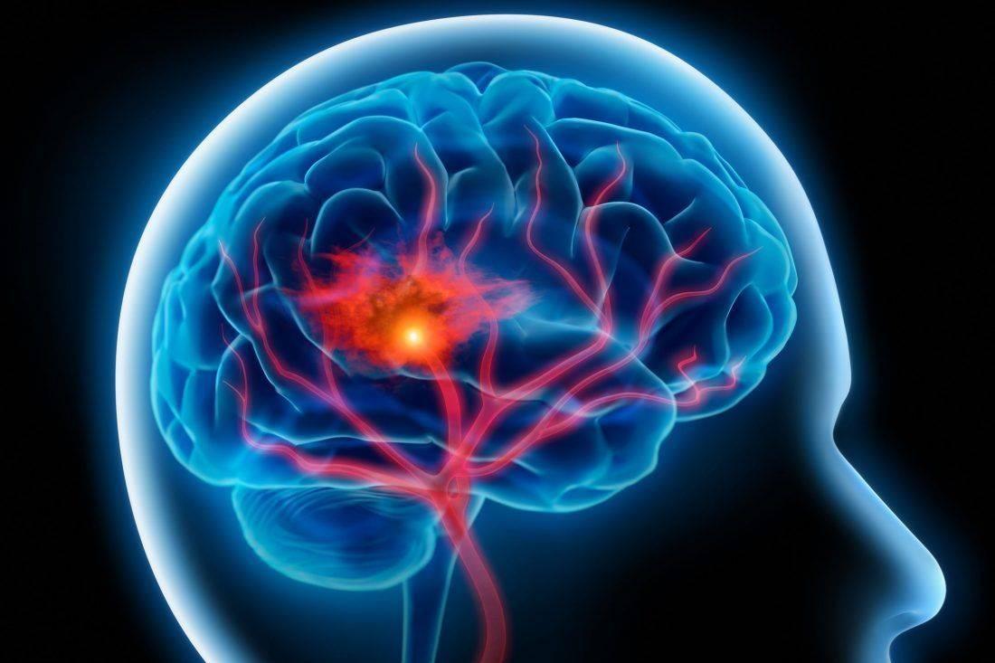 Мозг человека с инсультом